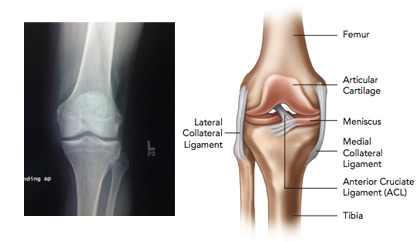 Knee Section